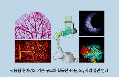 창의IT 김철홍 교수팀, 암 치료 과정 '광음향 현미경'으로 실시간 관찰